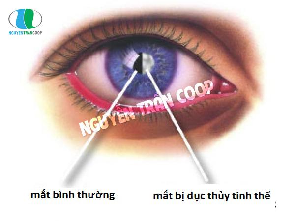 Đục thủy tinh thể là bệnh về mắt thường gặp ở người cao tuổi