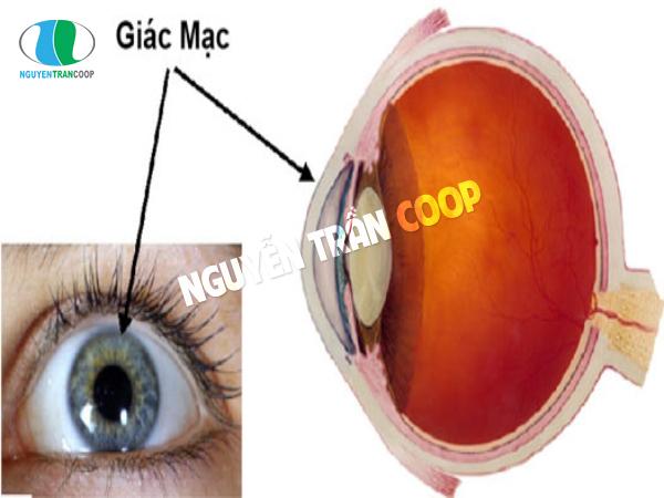 Bệnh giác mạc là bệnh về mắt thường gặp