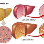 Nấm Lim Xanh trị gan nhiễm mỡ