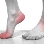 Làm Thế Nào Để Giảm Các Cơn Đau Bệnh Gout?
