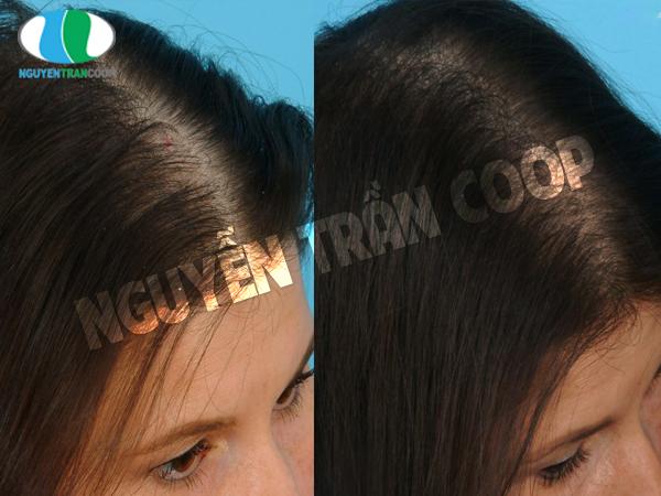 Các bài thuốc giúp tóc mọc nhanh từ hà thủ ô