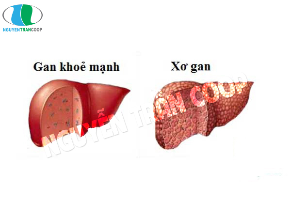 Xơ gan là biến là biến chứng từ gan nhiễm mỡ