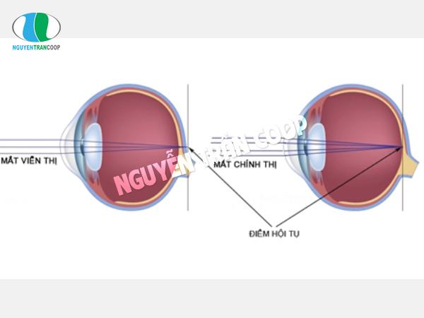 Viễn thị là bệnh về mắt thường gặp nhất