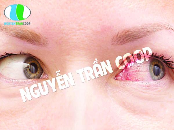 Lạm dụng mỹ phẩm nhiễm trùng mắt