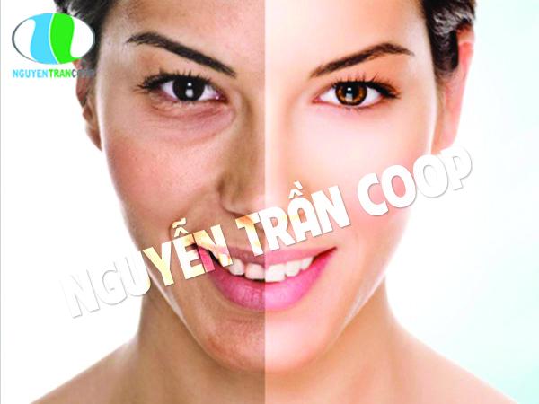 Lạm dụng mỹ phẩm có thể gây biến đổi màu da
