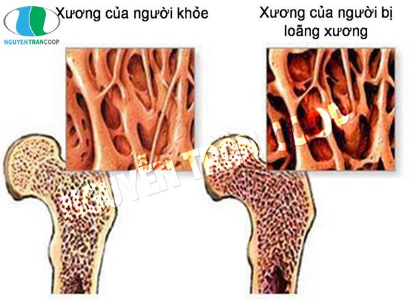 Loãng xương ở người gầy bệnh tật
