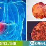 Nguyên nhân dẫn đến ung thư gan