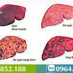 Cách phát hiện sớm và phòng ngừa bệnh xơ gan