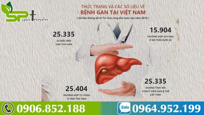 benh-suy-gan-5