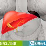 Bệnh gan to: Nguyên nhân, triệu chứng và cách chữa