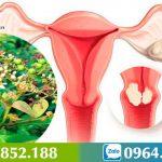 Xạ Đen – Giải pháp cho bệnh nhân mắc u xơ cổ tử cung