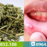 Cách chữa nhiệt miệng – Dùng cây Bìm Bịp xua tan nỗi lo